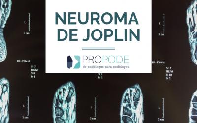 Neuroma de Joplin